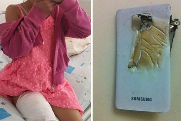7 year old injured by exploding Galaxy S2