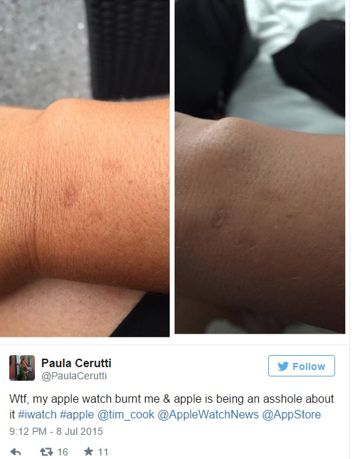 Some Apple Watch users complained about skin irritation upon wearing the device