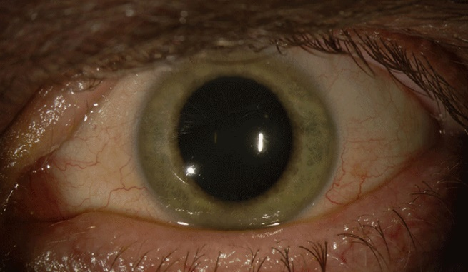 Virus can hide inside your eyeballs without making you feel sick