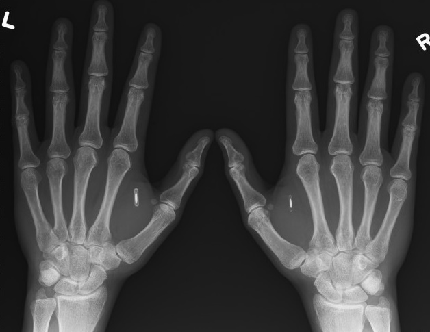 Man gets NFC chip injected in hands to store Bitcoin wallet: Weird world!