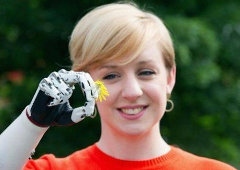 Woman from London Gets Worlds Most Advanced beBionic Hand Replacement