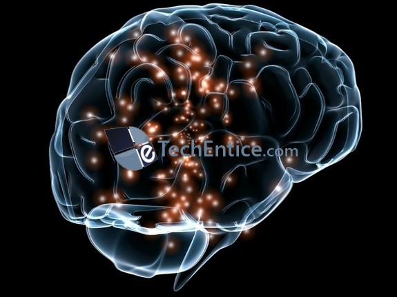 Memory implants- a blend of electronics with neuroscience to replace lost memory