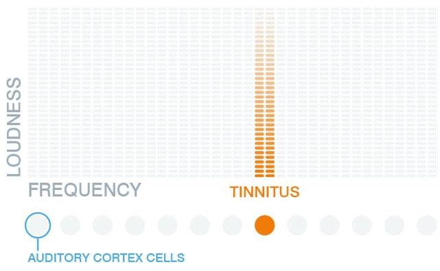 Tinnitus: Method of treatment with new audio App