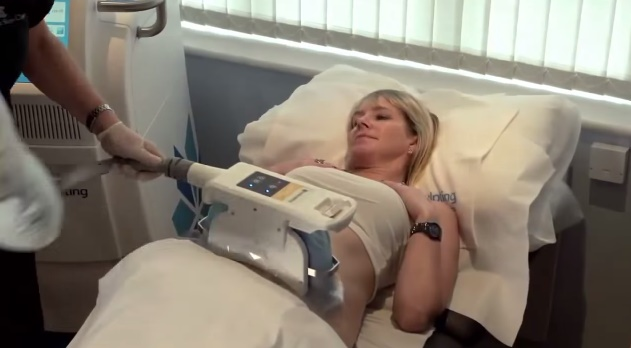 Coolsculpting: A new way to excrete fat by cooling it