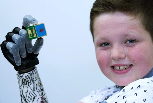 i-limb Quantum: Kid gets new life with new high tech bionic hand