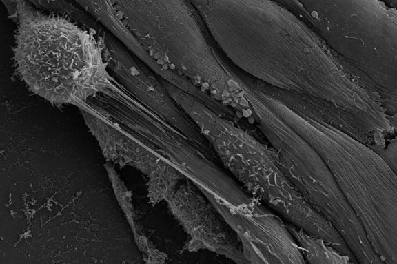 How cancer cells utilize blood vessels to invade to other body parts and create new tumors?